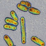 Escherichia coli bacteria,TEM