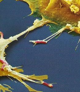 crop Macrophages grabbing ecoli  JPEG