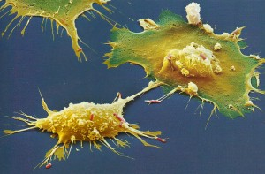 Macrophages grabbing ecoli2