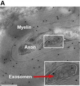 exosomes 1
