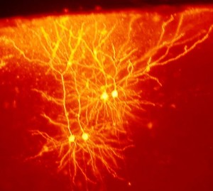 RED Mouse_cingulate_cortex_neurons