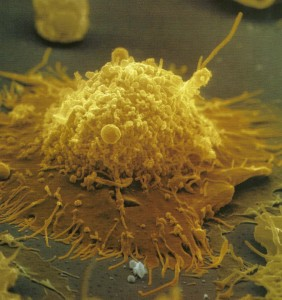 B lymphocyte Memory cell