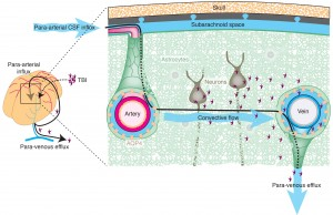 neurovascular10