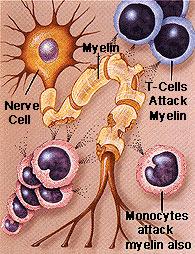 myelindamage