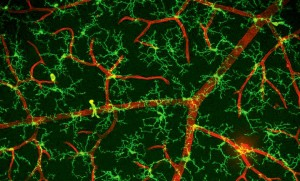 MG scan for synapses