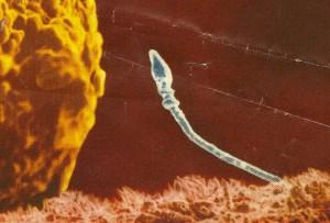 Sperm 2 CROP