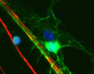 Crop   exosomes neurons