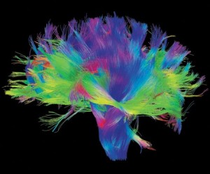 Colorful brain fibers