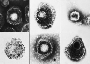 PD  800px-Herpesviridae_EM_PHIL_2171_lores