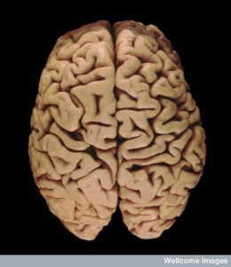 B0005749 Human brain from above
