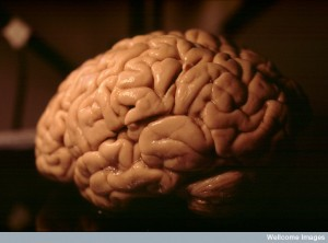 B0003275 Side view of the human brain