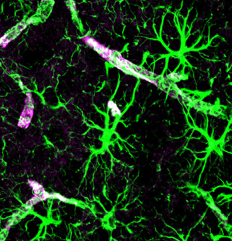 Astrocyte Calcium Signaling Leads to More Brain Complexity