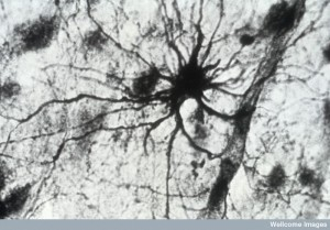 N0006677 Photomicrograph showing 'star' cell astrocyte