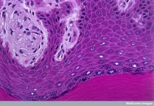 B0004431 Section through epidermis showing melanin layer. LM