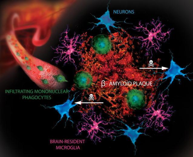 Microglia Diagram