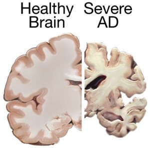 PD Alzh brain