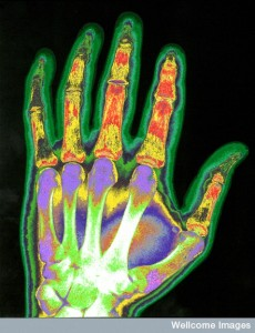 B0005625 Colour-enhanced X-ray of a hand