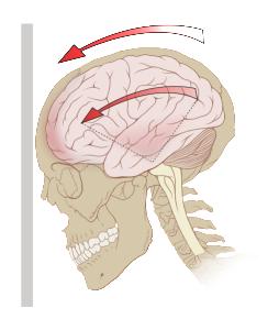 Delldot wik Concussion_mechanics