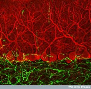 B0006224 Purkinje cells in the cerebellum