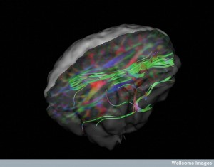 B0008398 White matter fibres of the uncinate fasciculus