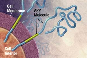 PD amyloid diagram model