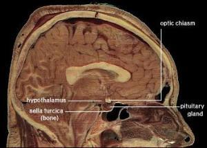 PD hypothalamus