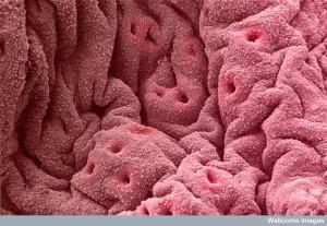 B0003543 Endometrium showing glands