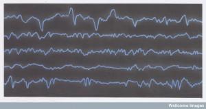 N0027711 Diagramatic representation of brain waves