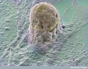 B0006219 Human embryonic stem cell
