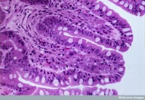 B0004421 Section through small intestine (jejeunum, villi, LM
