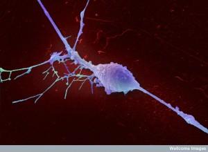 B0006918 Retinal ganglion cell