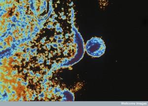 N0013888 HIV virus budding from T lymphocyte