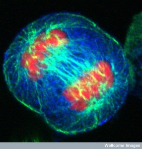 B0005018 Human cell in anaphase