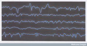 N0027711 Diagramatic representation of brain waves Credit: Miles Kelly Art Library. Wellcome Images images@wellcome.ac.uk http://wellcomeimages.org Diagramatic representation of brain waves - eeg trace Digital artwork Published: - Copyrighted work available under Creative Commons by-nc-nd 4.0, see http://wellcomeimages.org/indexplus/page/Prices.html