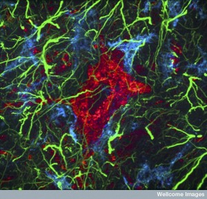 B0009824 Motor neurone from rat spinal cord, LM Credit: Simon Beggs. Wellcome Images images@wellcome.ac.uk http://wellcomeimages.org Confocal micrograph of a motor neurone (red) from a 12 day old rodent spinal cord. Surrounding the neurone is a rich network of cells that exist in the central nervous system (CNS) in addition to neurones. Microglia (blue) and astrocytes (green) are visible here. Width of image is 120 micrometres. Confocal micrograph 2010 Published:  -  Copyrighted work available under Creative Commons by-nc-nd 4.0, see http://wellcomeimages.org/indexplus/page/Prices.html