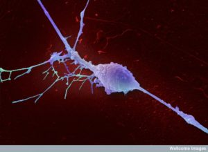 B0006918 Retinal ganglion cell Credit: Annie Cavanagh. Wellcome Images images@wellcome.ac.uk http://wellcomeimages.org An isolated retinal ganglion cell. This is a type of neuron typically located near the inner surface of the retina of the eye that receives visual information from photoreceptors via two intermediate neuron types. Retinal ganglion cells collectively transmit visual information from the retina to several regions in the thalamus, hypothalamus, and midbrain. They vary significantly in terms of their size, connections, and responses to visual stimulation but they all share the defining property of having a long axon that extends into the brain. These axons form the optic nerve, optic chiasm, and optic tract. Scanning electron micrograph 2008 Published:  -  Copyrighted work available under Creative Commons by-nc-nd 4.0, see http://wellcomeimages.org/indexplus/page/Prices.html