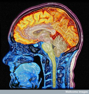 B0005622 Enhanced MRI scan of the head Credit: Mark Lythgoe & Chloe Hutton. Wellcome Images images@wellcome.ac.uk http://wellcomeimages.org Digitally enhanced MRI of the human head showing the brain and spinal cord in orange/yellow and the other tissues in blue and pink. Magnetic resonance imaging 2004 Published:  -  Copyrighted work available under Creative Commons by-nc-nd 4.0, see http://wellcomeimages.org/indexplus/page/Prices.html