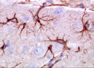 PD  Active Astrocytes  good colorful pic