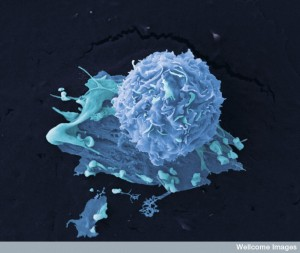 B0006520 Breast cancer cells Credit: Anne Weston, LRI, CRUK. Wellcome Images images@wellcome.ac.uk http://wellcomeimages.org Colour-enhanced image of breast cancer cells. Scanning electron micrograph 2006 Published: - Copyrighted work available under Creative Commons by-nc-nd 4.0, see http://wellcomeimages.org/indexplus/page/Prices.html