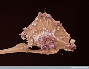 B0006521 Breast cancer cell Credit: Anne Weston, LRI, CRUK. Wellcome Images images@wellcome.ac.uk http://wellcomeimages.org Colour-enhanced image of a breast cancer cell. Scanning electron micrograph 2006 Published: - Copyrighted work available under Creative Commons by-nc-nd 4.0, see http://wellcomeimages.org/indexplus/page/Prices.html