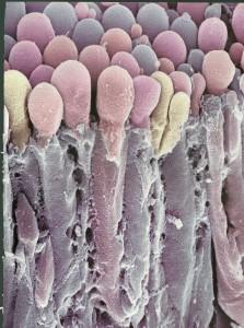 JPEG choroid Plexus cells secrete spinal fluid