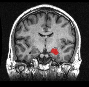 Geoff B Hall wik MRI_Location_Hippocampus_up.