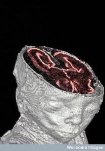 B0001014 Foetal MRI scan Credit: Nathan Jeffery. Wellcome Images images@wellcome.ac.uk http://wellcomeimages.org A high resolution magnetic resonance imaging (HRMRI) scan of a miscarried 20-week old human foetus, showing the head and a cross-section of the brain. This technique uses a magnetic field to induce the hydrogen nuclei in tissues to absorb and emit radio waves, producing an image which allows internal structures to be seen without disturbing the actual specimen. Published: - Copyrighted work available under Creative Commons by-nc-nd 4.0, see http://wellcomeimages.org/indexplus/page/Prices.html