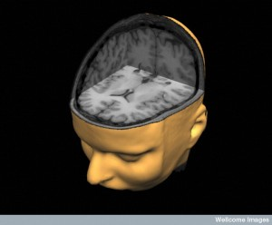 B0003572 Cut-away MRI of brain
