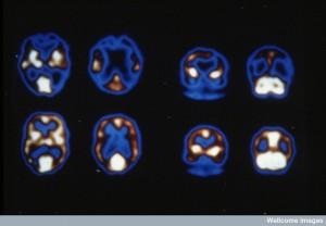 N0016670 Alzheimer's dementia and normal brain blood flow