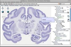 Was a bee wiki BrainMaps_treewidget