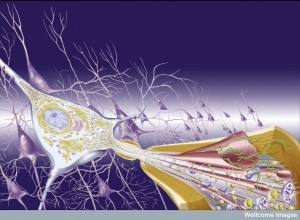 N0021139 Illustration; the pathology of Alzheimer's Disease