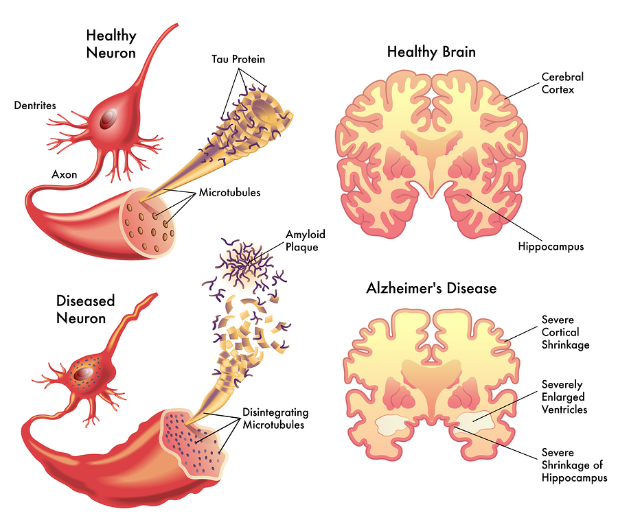 Tau, the toxic protein that causes Alzheimers, naked