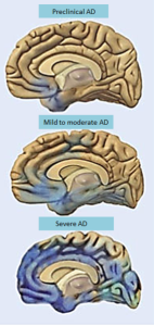 PD ALz brain progression