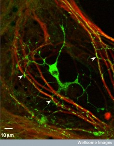 B0003713 Myelination: oligodendrocyte engaging with neurites.